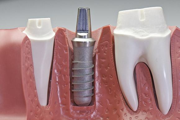 Implantes y prótesis